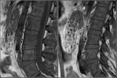 The Radiology Assistant : Lumbar Disc Herniation Epidural Hematoma, Severe Lower Back Pain, Abdominal Aorta, Aortic Dissection, Spinal Canal, Lumbar Disc, Intervertebral Disc, Spondylolisthesis, Disk Herniation