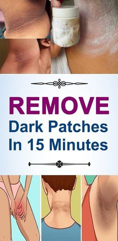 Now days, many of us are suffering with skin darkening. The main cause for skin darkening is high exposure of sunlight, pigmentation of the skin Warts On Hands, Warts On Face, Brown Spots On Skin, Skin Spots, Dark Spots, Brown Skin, Dark Brown, Dark Patches On Skin, Spots On Forehead