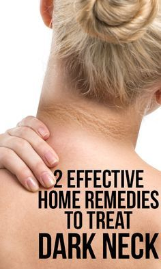 Many people experience dark neck that results from improper skin care or hyper pigmentation. Here are home remedies for dark neck you should try to abate the dark neck skin.