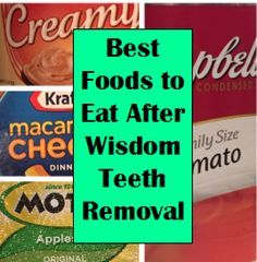Boots & Wildflowers: What to Eat After Wisdom Teeth Removal