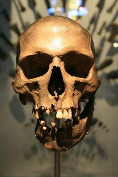 Skull at the Hunterian Museum by gajtalbot, via Flickr