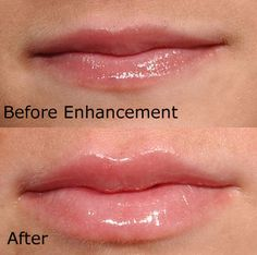 Juvederm--before and after