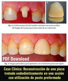 Reconstrucción de una pieza tratada endodónticamente en una sesión con utilización de poste preformado - Caso Clínico   OVI Dental