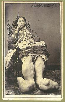 """Mutter Museum photo:  """"Well, I tried soaking the feet, but somehow the puffiness doesn't go away.  Got any suggestions?"""""""