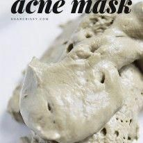 DIY Acne Mask - Unclog pores and blast blemishes and blackheads with this simple homemade DIY acne mask recipe! #ExfoliatingFaceScrub Homemade Acne Mask, Diy Acne Mask, Acne Face Mask, Skin Mask, Face Masks, Face Skin, Face Mask Peel Off, Face Peel, Face Mask For Spots