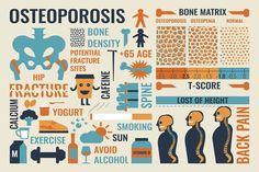 Ernährung bei Osteoporose: Knochenfreundlich essen - Eine knochenfreundliche Ernährung bei Osteoporose ist vor allem eine kalziumreiche. Auch einige weitere Faktoren verhindern das Fortschreiten der Krankheit.