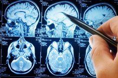 [WEB SITE] Blood Test Could Detect Traumatic Brain Injury | TBI Rehabilitation