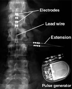 Spinal Cord Stimulator....I have more electrobes but this is what it actually looks like.....This device allows me to walk, which I could barely do because of Complex Regional Pain Syndrome.