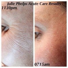 Julie Phelps after ONE application of Acute Care