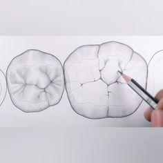 Protésico Dental, Dental Works, Dental Facts, Dental Humor, Dental Teeth, Dental Surgery, Dental Anatomy, Medical Anatomy, Dental Wallpaper
