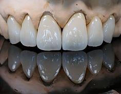 Lente Dental, Dental Anatomy, Cute Tooth, Dental Veneers, Perfect Teeth, Dental Laboratory, Dental Art, Colorful Wallpaper, Zbrush