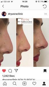 Non-surgical - - Kosmetische Chirurgie - Hautpflege Nose Fillers, Facial Fillers, Nose Plastic Surgery, Nose Surgery, Bulbous Nose, Pretty Nose, Nose Reshaping, Rhinoplasty Before And After, Rhinoplasty Surgery