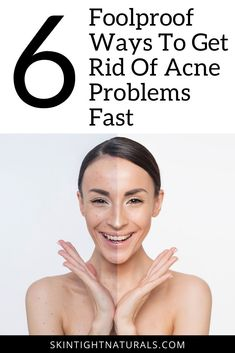 How to Reverse Acne Problems Fast! 6 Foolproof Ways To Get Rid Of Acne For Good! Diy Skin Care, Skin Care Tips, Skin Tips, Fall Makeup Looks, Skin Secrets, How To Get Rid Of Acne, Acne Remedies, Skin Tightening, Acne Treatment