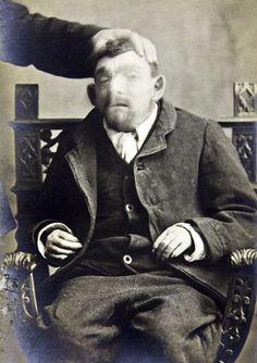 William Henry Naden  West Riding Pauper Lunatic Asylum