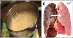 pulmoes_-_novo_-_cebola_e_gengibre