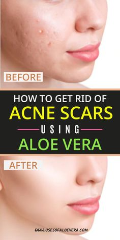 Among many natural products aloe Vera works best for any skin problem including acne. The extract of aloe Vera is used to heal minor, rashes, allergies, cuts and sunburns. We are going to see 9 ways to treat acne and scars in this article. Aloe For Acne, Aloe Vera For Scars, Aloe Vera For Skin, Aloe Vera Skin Care, Aloe Vera Face Mask, Back Acne Treatment, Natural Acne Treatment, Skin Care Treatments, Natural Beauty Products