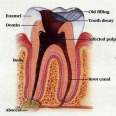 Learn what a tooth infection, tooth root infection, and dental abscess is and understand natural rememdies on how to prevent it. You can heal a dental abscess NATURALLY! Natural Medicine, Herbal Medicine, Health Remedies, Herbal Remedies, Arthritis Remedies, Holistic Remedies, Cold Remedies, Holistic Healing, Natural Allergy Relief