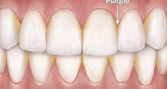Elimina la placa y el sarro de los dientes con un solo ingrediente natural