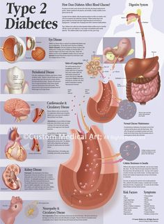 Contemporary Illustration - Type 2 Diabetes Patient Education Poster (Original Art from Custom Medical Art)