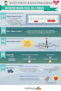 Interpretación de un electrocardiograma