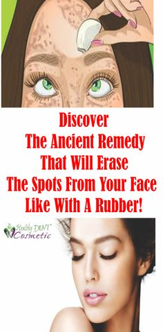 GET THE PERFECT SKIN THAT YOU ALWAYS WANTED! DISCOVER THE ANCIENT REMEDY THAT WILL ERASE THE SPOTS FROM YOUR SKIN LIKE WITH A RUBBER!