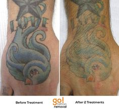 Just 2 treatments using our PicoSure have removed about 60-70% of the Love and swallow on this client's hand.  A few more and it will be GOne!   Every tattoo will have different results, we post a wide variety of images to help set realistic expectations.    See more progress photos http://www.gotattooremoval.com/laser-tattoo-removal-progress-photos/  Watch treatments being done http://www.gotattooremoval.com/laser-tattoo-removal-videos/  Schedule http://www.gotattooremoval.com/schedule/