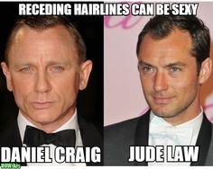haircuts men thin receding hairline - Google Search