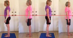 posture alignment therapy, TMJ, posture
