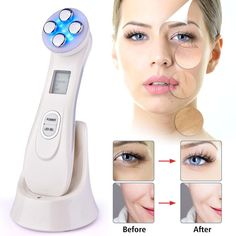 Facial Skin Rejuvenation RF EMS Mesotherapy Face Lifting 5 in 1 Beauty Radio Frequency LED Photon Blackhead Acne Wrinkle Remover Loción Facial, Facial Care, Facial Massage, Facial Muscles, Anti Aging, Face Tightening, Anti Ride, Loose Skin, Skin Care Products