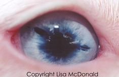 This is a homozygous merle. Her pupil appears to be very irregular in shape and she appears at casual inspection to have colobomas at the 3:30, 10:00 and 12:00 o'clock positions. However, she has been examined thoroughly by an opthamologist and what appear to be holes in the iris are actually just dark pigment. Her pupil is normal and her eyesight is within normal limits. I included this example to show that things are not always as they seem. A good veterinary checkup is a must in…