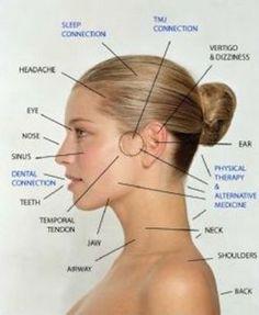 Traitements pour lutter contre le syndrome de l'articulation temporo-mandibulaire