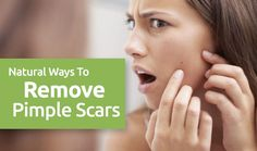 Are you not disgusted with Pimple Scars? Know the natural ways to remove pimple scars.