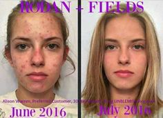 Rodan and Fields Unblemish: control acne and oily skin. or your money back. Home Remedies For Pimples, Acne Remedies, Red Acne Marks, Back Pimples, How To Reduce Pimples, Unclog Pores, Acne Solutions, Hormonal Acne, Rodan And Fields