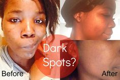 How To Deal with Dark Spots x
