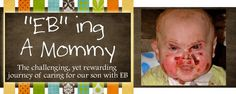 EB ing a Mommy...Tripp and Courtney Roth's Journey with Epidermolysis Bullosa
