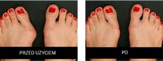 Valgus 2 in 1 - ejercicios - Yorgo Angelopoulos Bunion Surgery, Pinterest Blog, Stilettos, 2 In, Student, Youtube, Beauty, Horoscope, Fitness