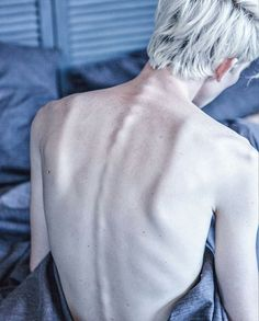 Both Elliot and Lee's back look like this. Lee's back bones protrude out a bit more than his.