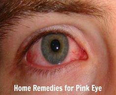 Home Remedies for Pink Eye | Health Villas