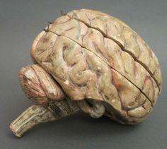 Modèle anatomique d un encéphale humain écorché, signé et daté sur la portion inférieure de l hémisphère droit : Anatomie clastique du Dr Auzoux 189. (dernier chiffre invisible). Dim : 20 x 18 x 14 cm. Écorché composé de 8 morceaux (les lobes temporaux sont manquants), dont le cervelet qui est fait de 3 parties mobiles et la base du cerveau en 2 parties mobiles. Tous les muscles et nerfs sont nommés par de petites étiquettes contrecollées.  Vente Chartres 30 nov 2013