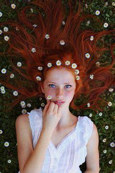 15 фотографий девушек с очаровательными веснушками.