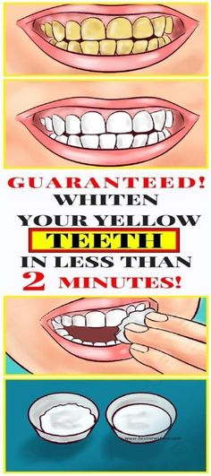 Top Oral Health Advice To Keep Your Teeth Healthy. The smile on your face is what people first notice about you, so caring for your teeth is very important. Unluckily, picking the best dental care tips migh Teeth Whitening Cost, Teeth Whitening Remedies, Natural Teeth Whitening, Whitening Kit, Dental Teeth, Dental Care, Dental Hygienist, White Teeth Coconut Oil, Sexy Women