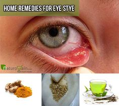 Home remedies for eye stye are the best natural ways to suppress the bump and their regular use help to treat the problem without any side effects.