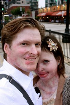 Stephanie Nielson – Severe Burn Victim's Inspiring Story Revisited  This is an amazing story. It chronicles the devastating injury to a young wife and mother, Stephanie Nielson, who was burned in a plane crash over 80% of her body with the worst damage being to her face. Her husband, Christian, was also seriously injured and burned, although not to the same degree. Stephanie was in a coma for approx 3 months...