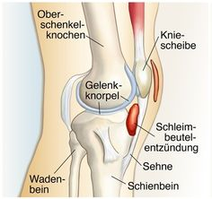 Bursitis is an overuse symptom of … – Beauty Ideas Medical Pictures, German Language Learning, Nursing Notes, Anatomy And Physiology, Learn German, Transformation Body, Fitness Nutrition, Natural Healing, Human Body