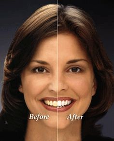 Teeth Whitening Remedies Here are the most effective teeth whiteners and brighteners, plus tips. Zoom Teeth Whitening, Teeth Whitening Methods, Natural Teeth Whitening, Beauty Tips For Skin, Beauty Secrets, Beauty Hacks, Hair Beauty, Teeth Bleaching, Cosmetic Dentistry