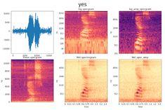 Kaggle Tensorflow Speech Recognition Challenge – Towards Data Science Google Brain, Ai Machine Learning, Speech Recognition, Deep Learning, Computer Programming, Data Science, Big Data, Challenge, Statistics
