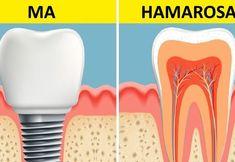 Tudósok megtalálták azt a módszert, amivel 2 hónap alatt újra lehet növeszteni a fogakat