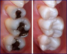 Dental Composites -- Tooth-colored composite resins are one of the alternatives to traditional amalgam fillings which offer superior aesthetics due to their capacity to be closely matched to surrounding teeth.