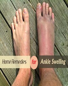 Home Remedies for Swelling | fineremedy