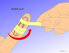 Treat Mallet Finger with a Splint Step 2.jpg